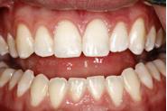 bonding broken tooth fragments figure 3