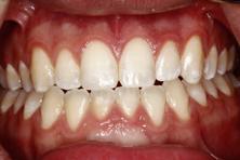 bonding broken tooth fragments figure 2