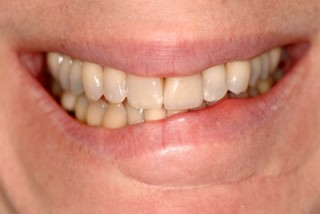 Close up of a crooked smile.