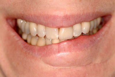 Lip Service: How to Evaluate a Crooked Smile