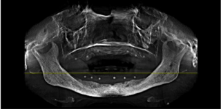 cbct in implant dentistry pdf