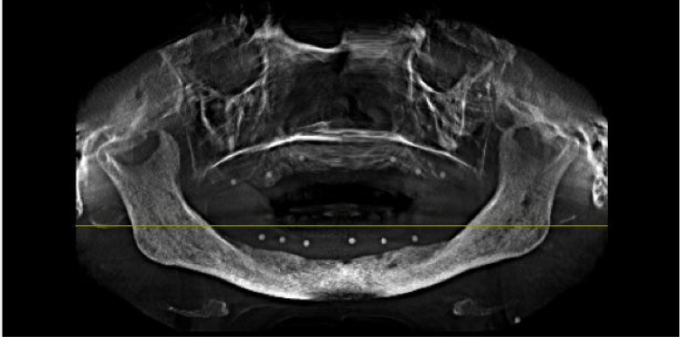 How CBCT Saved Our Keisters