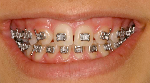 Three Key Tooth Positions for Your Orthodontist