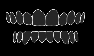 White outlines of top and bottom teeth on a black background.