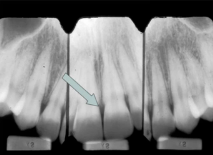 Three xray views of a patient's front teeth