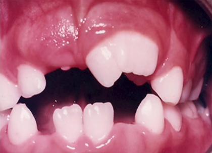 Geminated Teeth