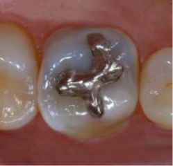 amalgam in restoring teeth essay