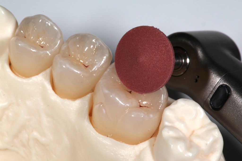Clinical Tips for Polishing Ceramics: e.max and Zirconia