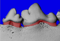 Take a Capsule to Fight Gum Disease?