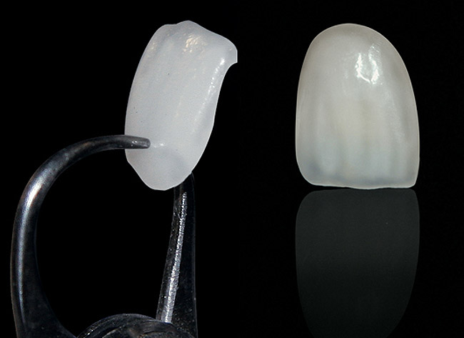 Feldspathic Vs. Pressable Ceramic Veneers