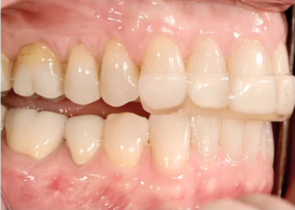 Tooth Wear Appliances: Anterior Bite Planes
