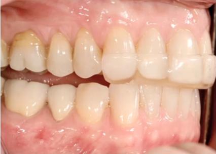 Tooth Wear Appliances Anterior Bite Planes Spear