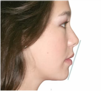 Facial Proportion and Profile