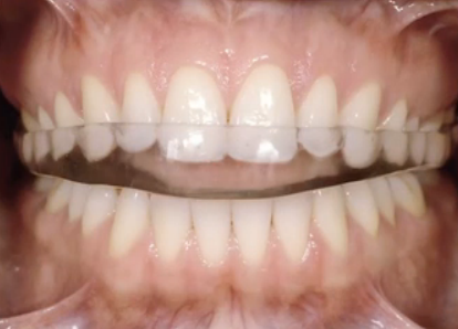 full arch maxillary