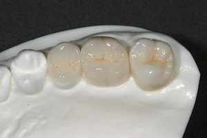 Zirconia Restorations: Setting Expectations