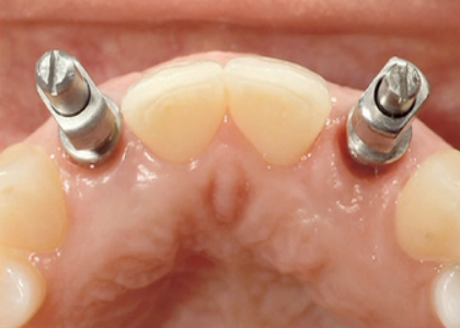 Correct an Un-esthetic Implant With a Pediculated Connective Tissue Graft