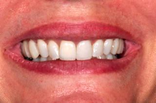dental mock-up image 1