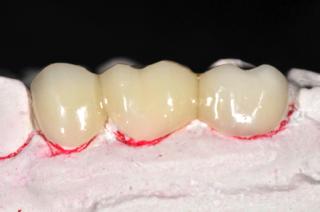 dental mock-up image 2