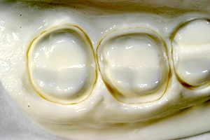 Posterior Full-contour Zirconia Crowns: Preparation Design