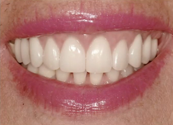 Esthetic Management of a Flat Periodontium Through Orthodontic Extrusion