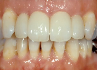 Esthetic Management of a Flat Periodontium Without Orthodontic Extrusion