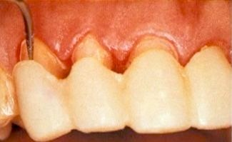 The Truth About Exceptional Veneer Temporaries