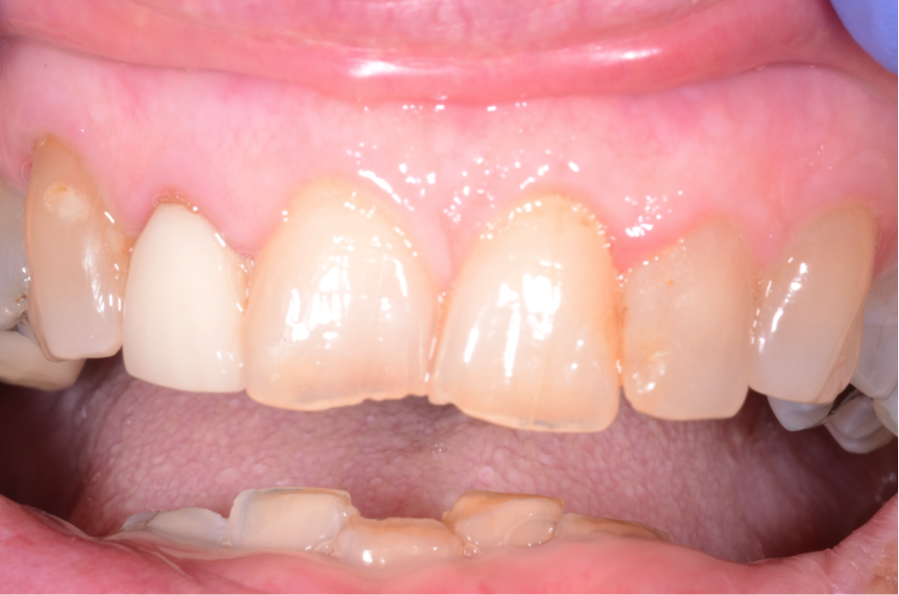 Shade Selection in the Anterior