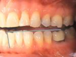Step 6: Grey line along bottom side of teeth.
