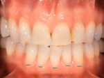 Step 8: Small lines at the gumline on the lower teeth