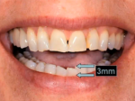 Step 5: 3mm arrows on bottom tooth