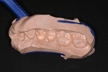 Quick and Easy Single Tooth Provisionals