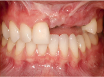 Biologic Challenges in Patients with Multiple Missing Anterior Teeth