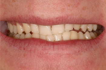 How to Approach Problems of Tooth Proportion