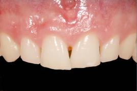 The Four Possible Causes for Lack of Tooth Display
