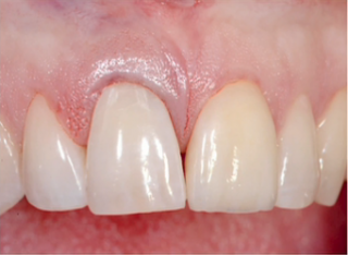 Surgeon uses extracted tooth as temporary.