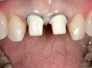 Cementatio of Crowns on Implant Abutments