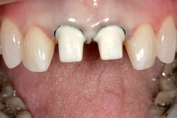 Cementation of Crowns on Implant Abutments