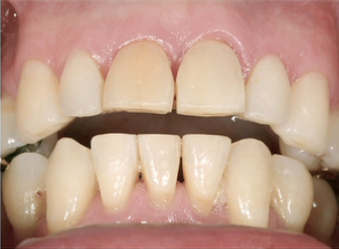treating excess overjet