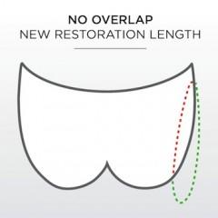 No Overlap, New Restoration Length.