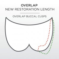Overlap, New Restoration Length. Overlapping buccal cusps.