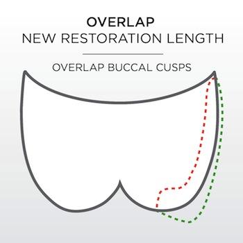 Understanding Overlap Buccal Cusps