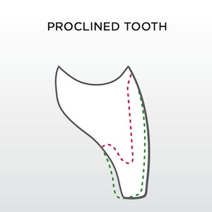 proclined tooth