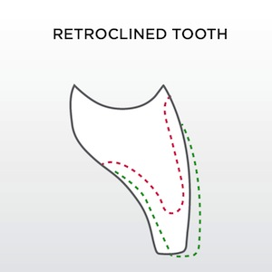 retroclined tooth
