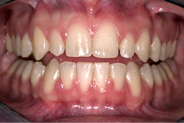 Black Triangles and Diastemas With Veneers