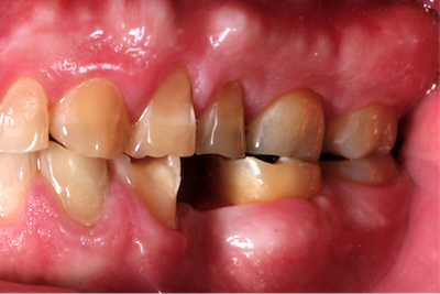 Erosion in Just One Part of the Mouth?