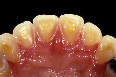 Dental Diagnosis of GERD