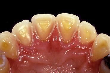 Dental Diagnosis of GERD