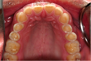 Patient's backside of teeth at age 36.
