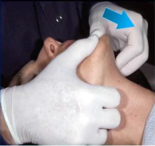 manipulation technique