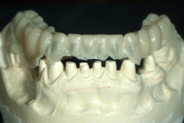 Saving Time With Shell Provisional Restorations